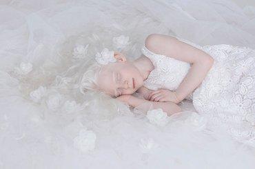 Fotografka w pięknym projekcie ukazuje inne oblicze albinosów
